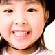 小児矯正:1期矯正(混合歯列期)