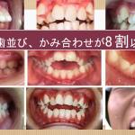 最近の子供達の口腔の発育について